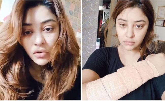 Payal Ghosh alleges attack by masked men,develops injuries!